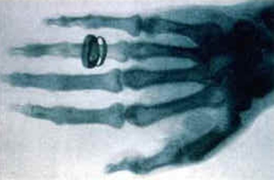 Anna Bertha's Hand